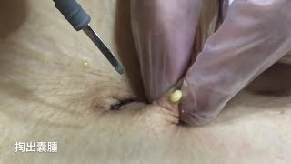 Beauty Tips For Skin #9 Most Satisfying Skin Video 2019