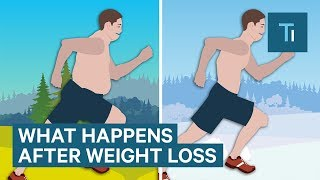 What Losing Weight Does To Your Body And Brain   The Human Body