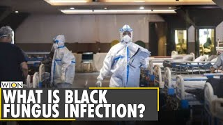 Black Fungus on rise in India | COVID-19 infection | What is black fungus | Latest English News
